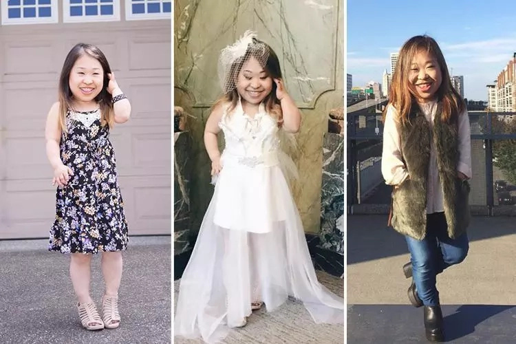 """Fashion has no size limit!"" Blogger with dwarfism advises women of all heights how to dress like model"