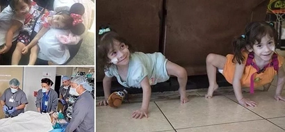Previously conjoined twins, 2, who were separated in delicate surgery begin new life