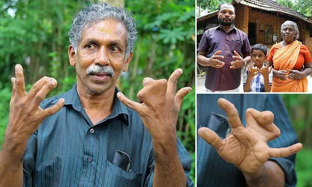 Meet 140 family members born with webbed fingers who believe they are cursed by God, say no to surgery (photos, video)