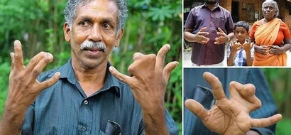 Meet 140 family members with webbed fingers who believe they are cursed by God, say no to surgery (photos)