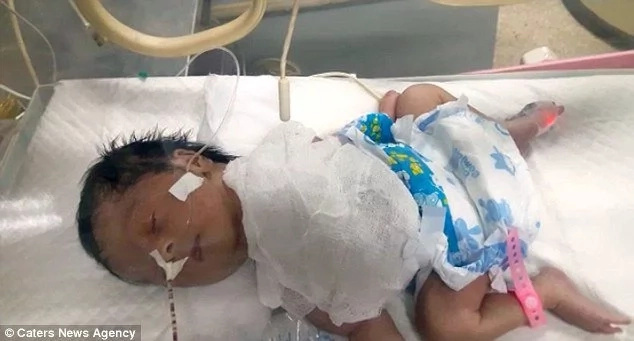 Parents in deep panic after their daughter is born with heart OUTSIDE her body (photos)