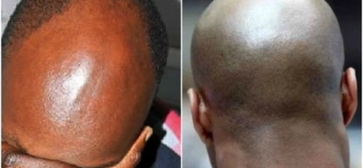 People with Baldness are now in danger as witch doctors start taking their lives
