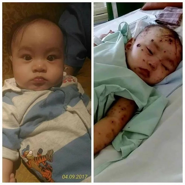 Baby suffers from rare skin disease