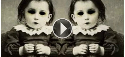 The top 10 strangest and most shocking stories of twins