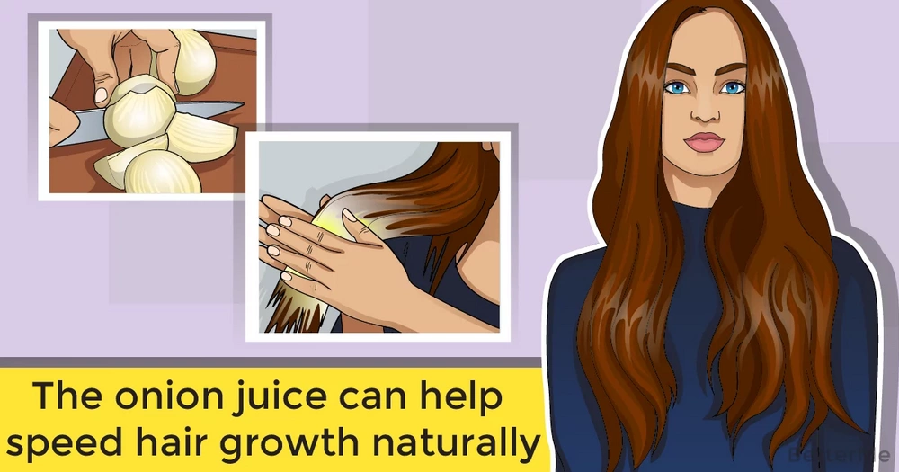 Onion juice can help speed hair growth naturally