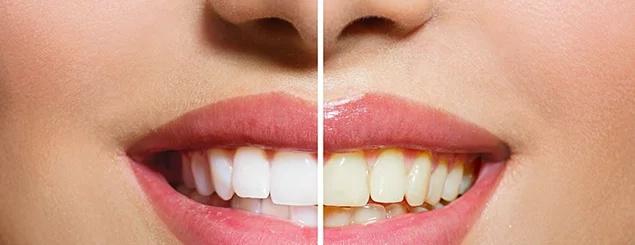 El odontólogo no quiere que veas esto, pero cuando lo apliques tendrás los dientes blancos como una perla
