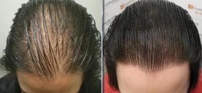 Controla la caída del cabello con esta sencilla formula- No te arrepentirás