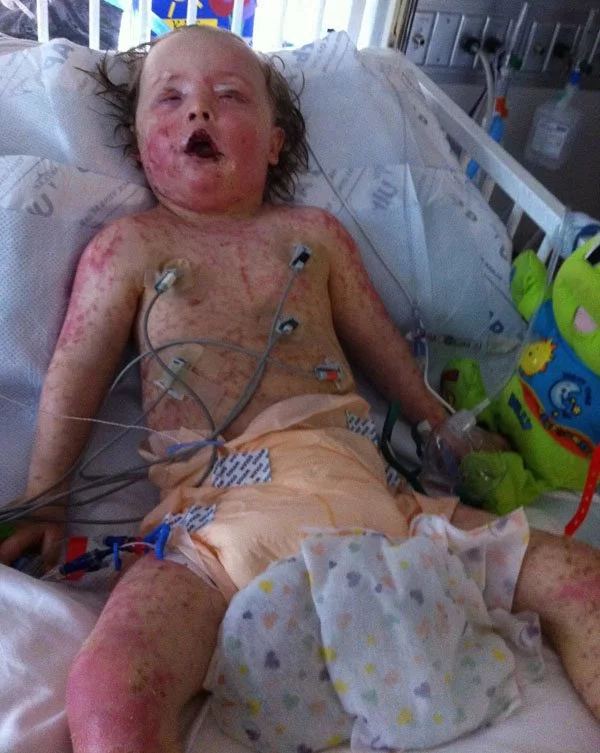 Little boy looks like he burnt in the fire after rare allergy