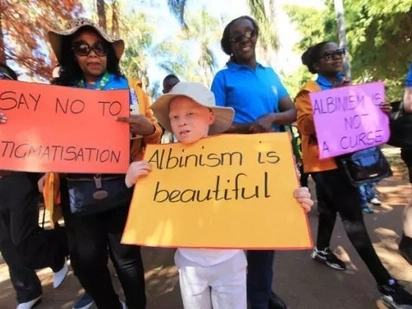 Tweeps show love goes deeper than your skin: #LoveForAlbinismFamEveryWhere goes viral