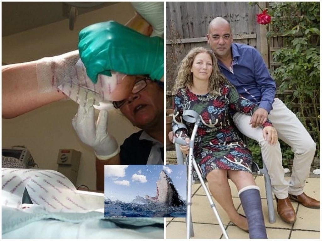 Mother-of-two, 40, showers her husband with praise after he saved her from jaws of SHARK (photos)