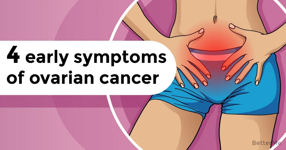 4 early symptoms of ovarian cancer