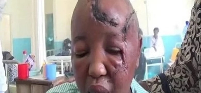 Woman whose hands were chopped off by husband to get KSh 400,000
