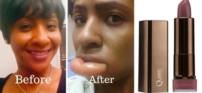 See what bad lipstick did to this woman's lip (photos)