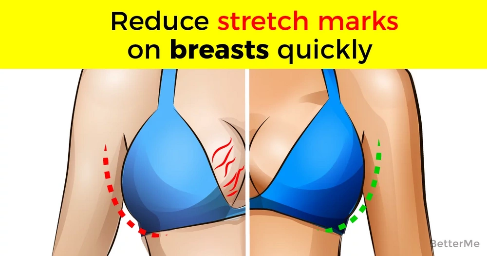 is it normal to get stretch marks on your breasts