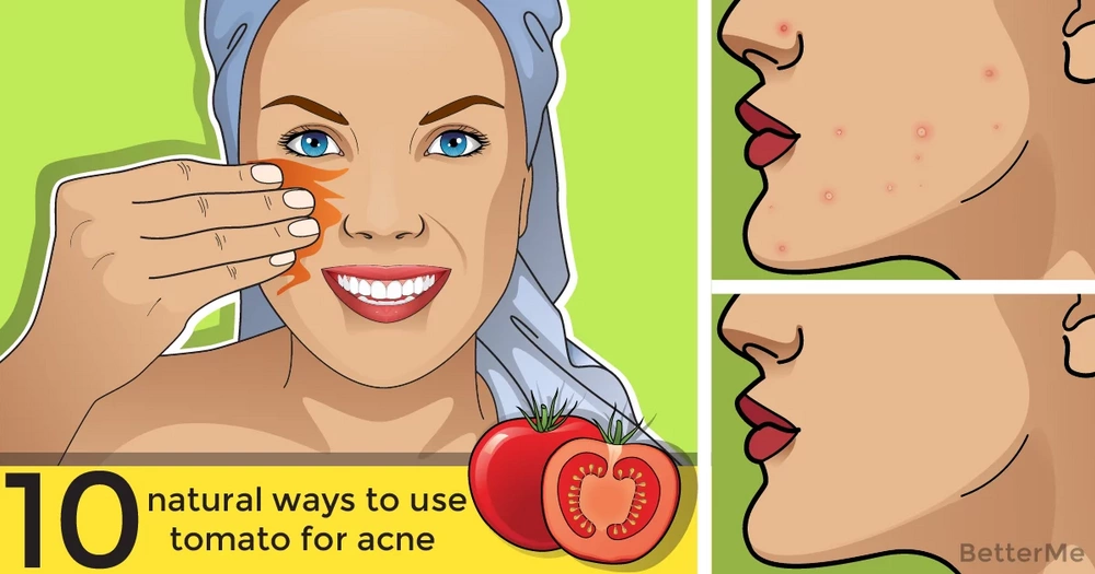 10 natural ways to use tomato for acne & acne scars