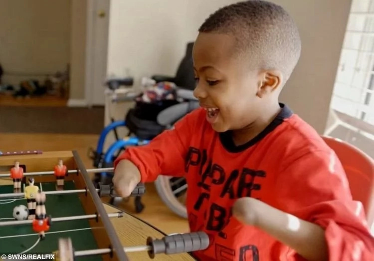 Enlivening! World's first double hand transplant on child a success - he can write, dress and play baseball