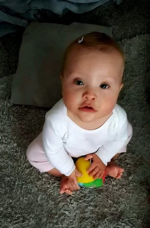 Bebé que nació con más agua que sangre en las venas sobrevivió de milagro