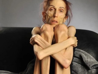 Actress makes a shocking video about her battle with anorexia