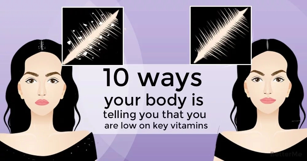 Top 10 ways body is telling that it has low on essential vitamins