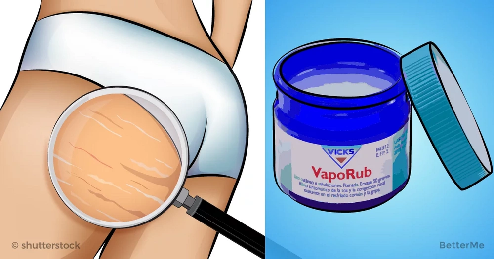 Fight against stretch marks and other problems with this remedy