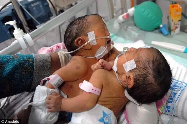 One heart for two! 19-year-old mother gives birth to twin girls joined at chest, see their photo