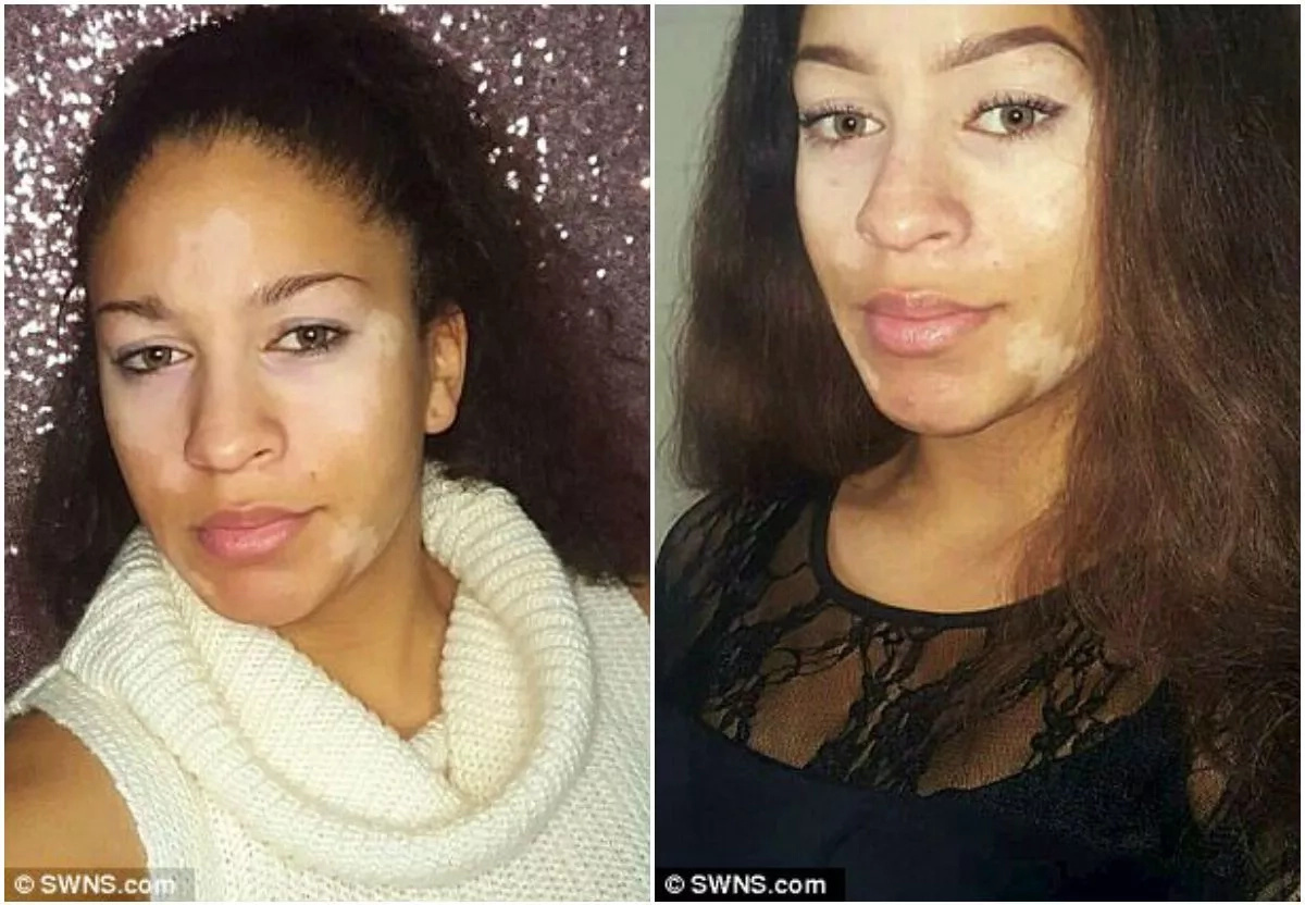Woman, 20, hid skin condition from boyfriend for 7 MONTHS, starts own cosmetic range (photos)