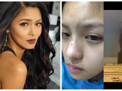 Retokada ba talaga siya? Kim Chiu disproves rumors of having her nose done by showing photographic evidence on Instagram