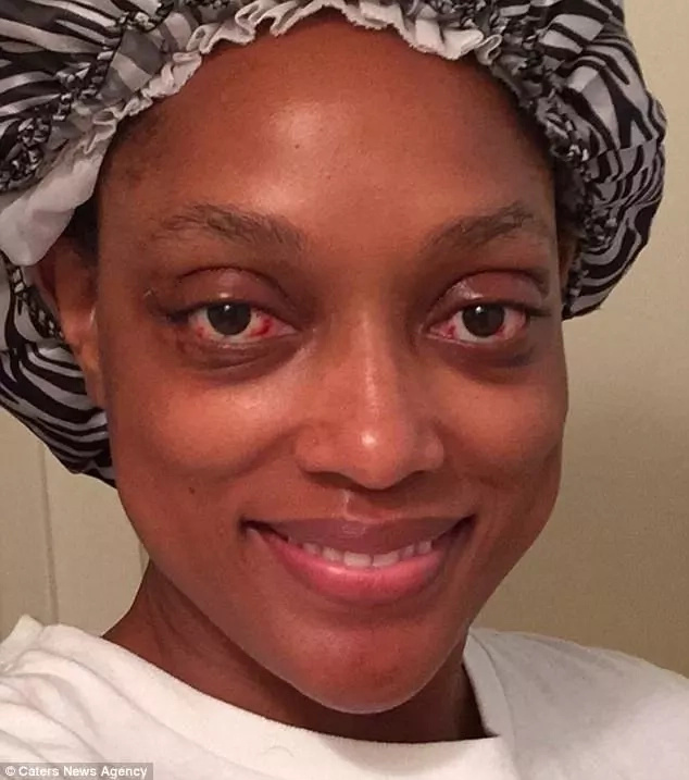A woman had eyes bulging out of their sockets and was going blind, but now her life changed (photos, video)
