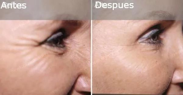 Botox casero, un ingrediente natural que te dejará asombrada desde el primer uso, no más arrugas