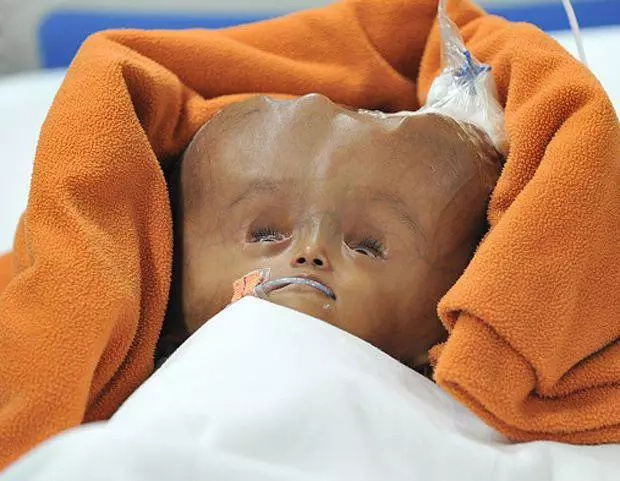 Dying child outlives parents' predictions about her life