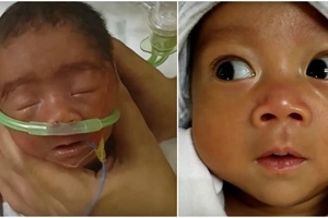 Amazing Filipino baby becomes the first to survive this gen disorder and continues to fight
