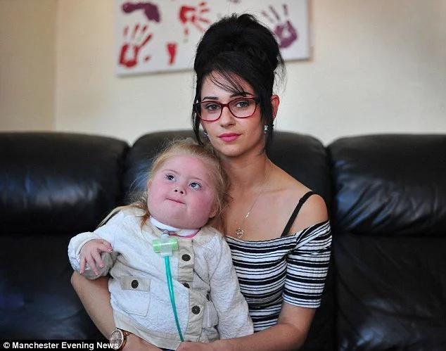 Lanzaron pólvora a niña discapacitada de tres años de edad