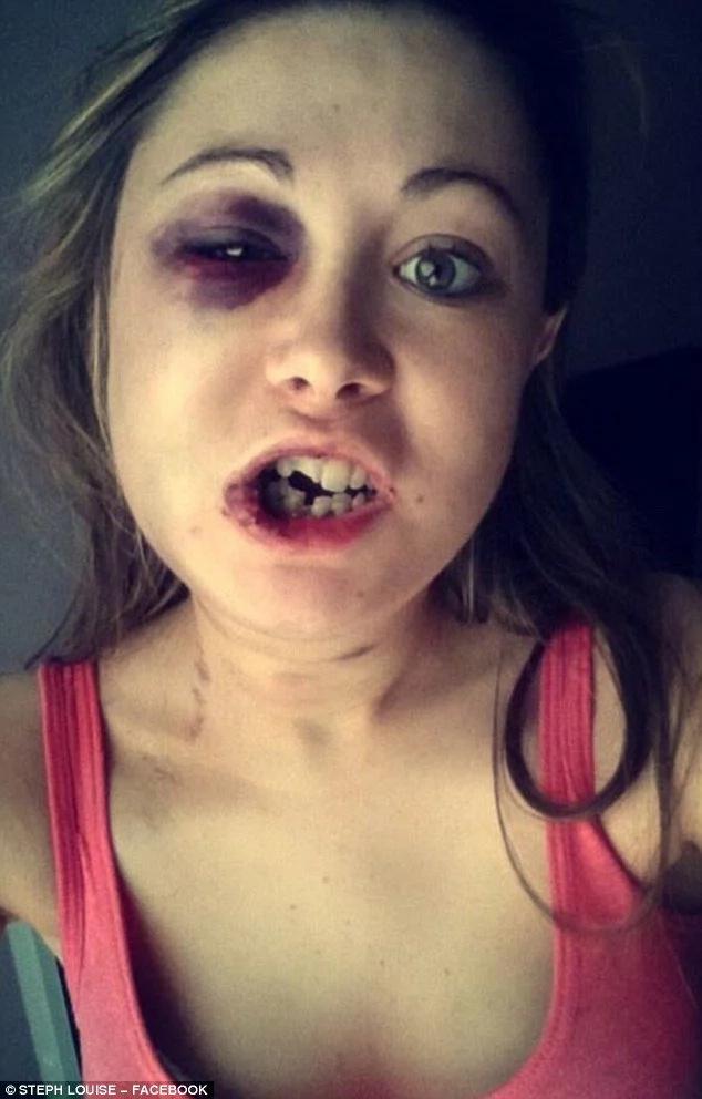 Ella no quería tener sexo y él le rompió la cara a golpes