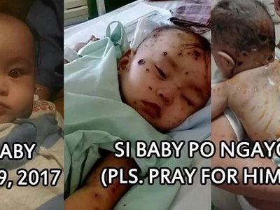 Tulong po! This 7-month-old baby suffers from a rare skin disease that puzzles even doctors! Take a look at his heartbreaking condition!