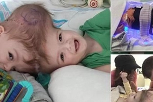 Twin Boys Got ONE HEAD, But Doctors Are Ready To Make The Miracle (Photos)