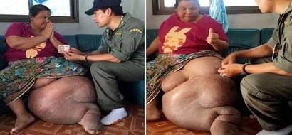 Husband leaves two kids and wife whose leg ballooned to 25 KILOS (photos)