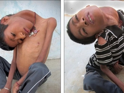 This boy's disease makes his head hang 180 degrees; what this woman did for him will melt your heart