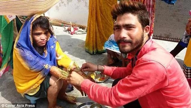 Kavita had to go through a long period of treatment