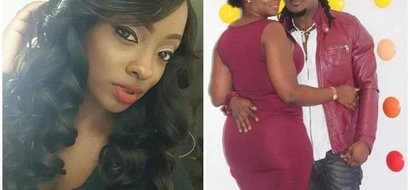 I questioned God! 23-year-old lady tells how she survived shooting but was left with MELTED skin all over her body(photos)