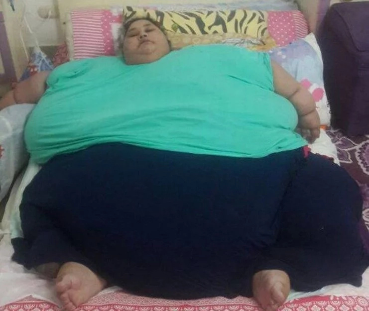 World's fattest woman who weighs half-tonne loses 100kg in just ONE week (photos)