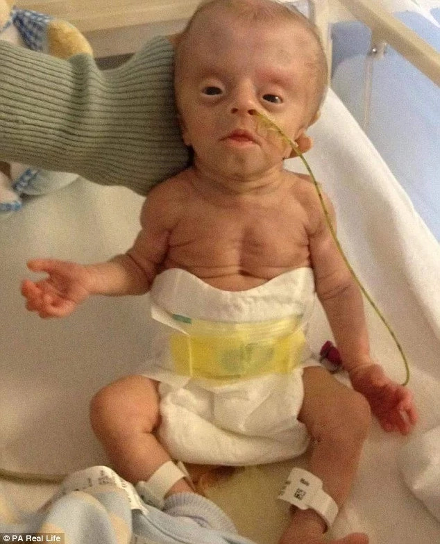 Boy, 4, who suffers from mysterious condition bullied for his ALIEN-like appearance (photos)
