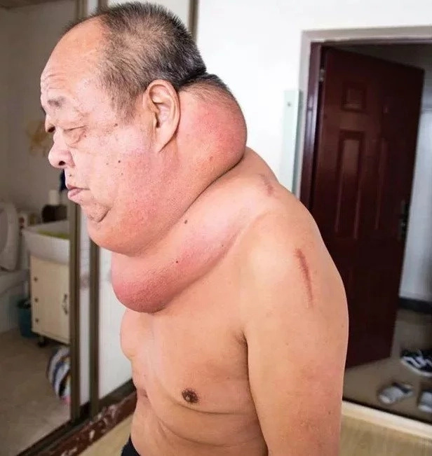 53-year-old man lives with giant horse neck for 13 years after he had bad reaction to treatment (photos)