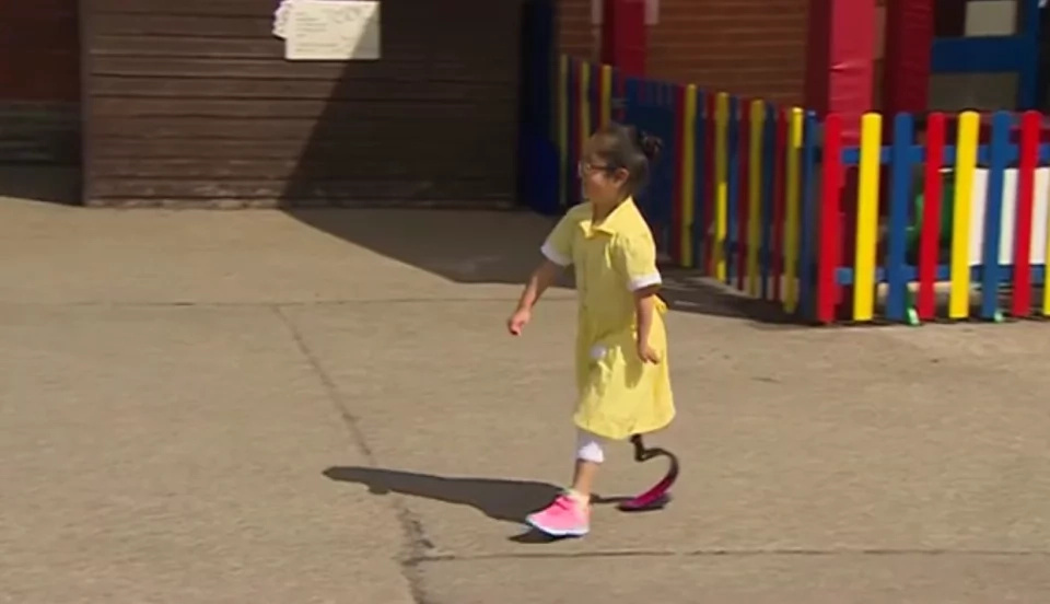 7-year-old disabled girl shows off her new leg for the first time