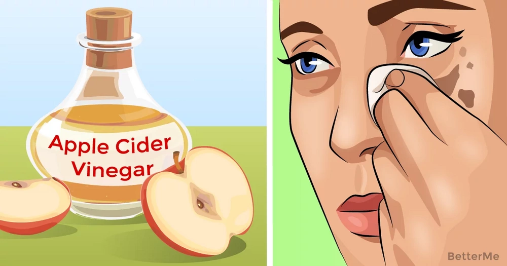 6 amazing ways to improve skin with apple cider vinegar