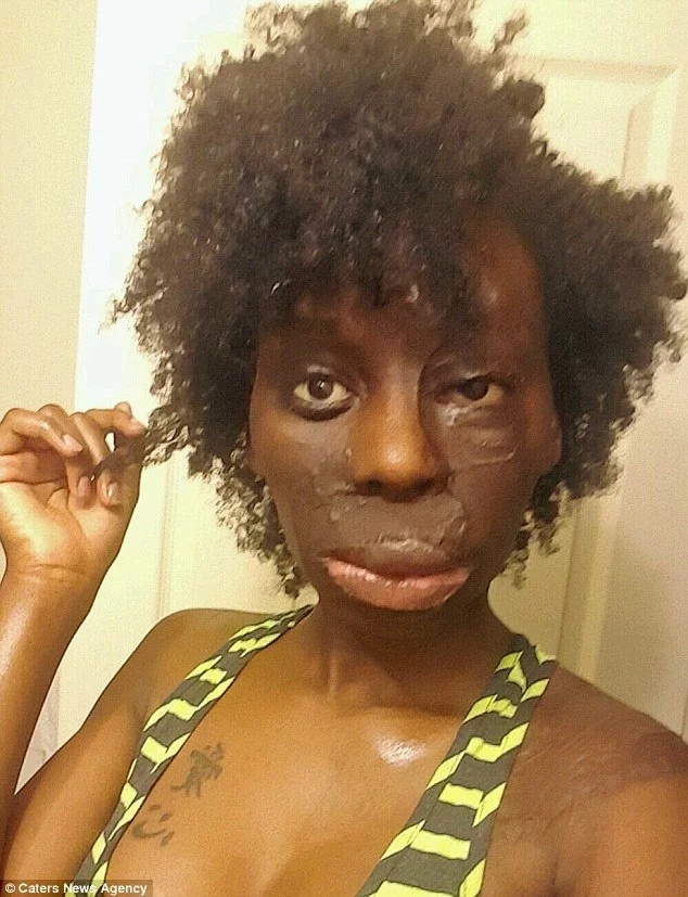 Meet burns survivor, 25, who wears her flaws like diamonds and rejects surgery (photos)