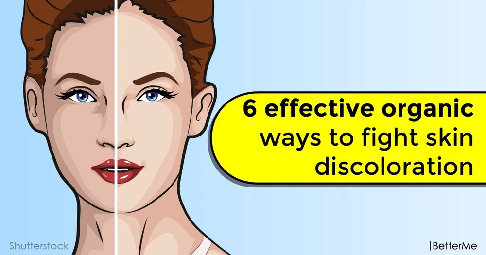 6 effective organic ways to fight skin discoloration