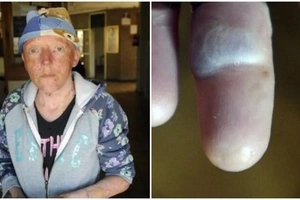 Woman, 38, with rare skin condition battles to get ID because she has no FINGERPRINTS (photos)