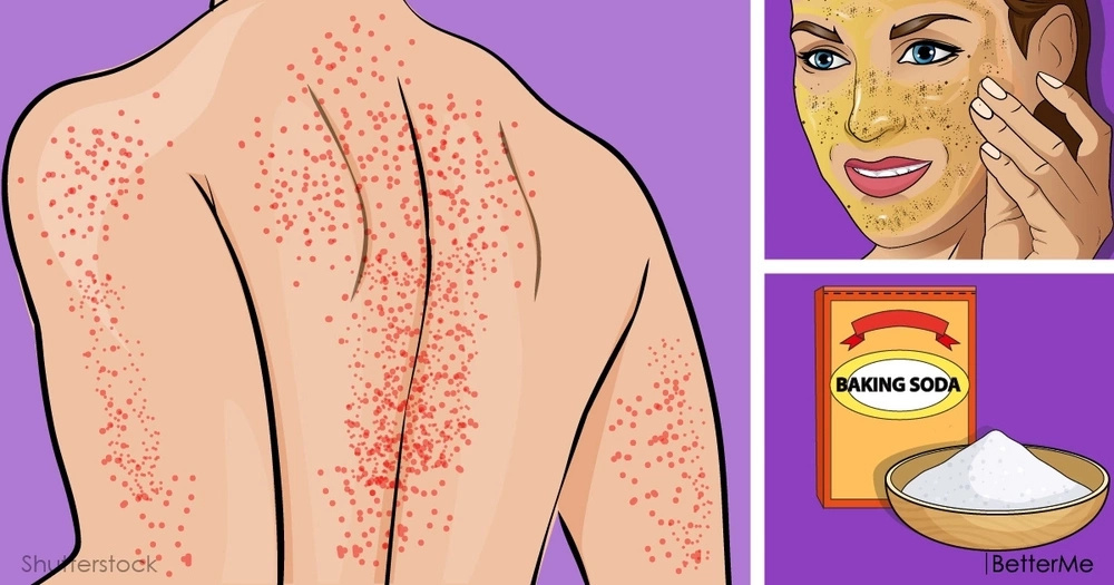 6 home remedies can help have a deal with heat rash