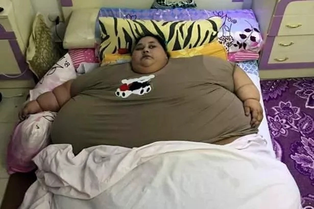 This Woman Believed To Be Fattest Female On Earth As Weight Reaches 79 STONE