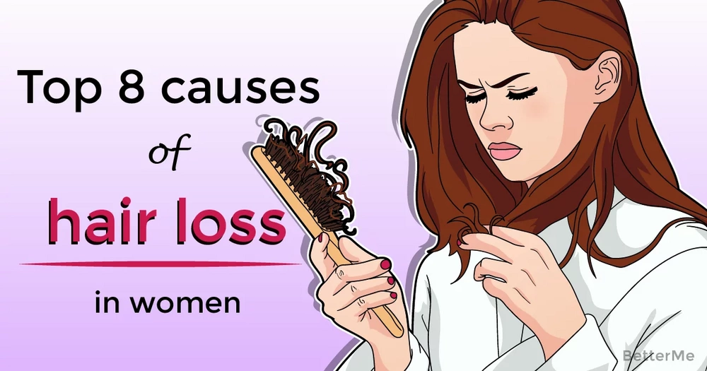 Top 8 causes of hair loss in women